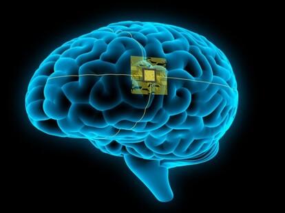 電脳化、脳インプラント