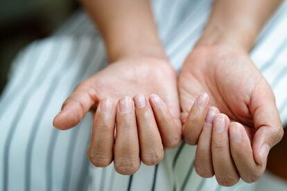 コロナウイルス感染者 爪に現れる変化について