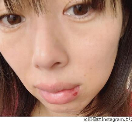 唇 腫れ 画像