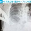バスを待っていたアジア系女性 突然刃物で襲われる 85歳女性は肺に穴が開く重傷 米・カリフォルニア州(6コメント)